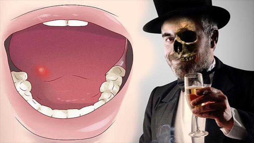 ¡Alarmante! Así es como el alcohol aumenta tu riesgo de cáncer